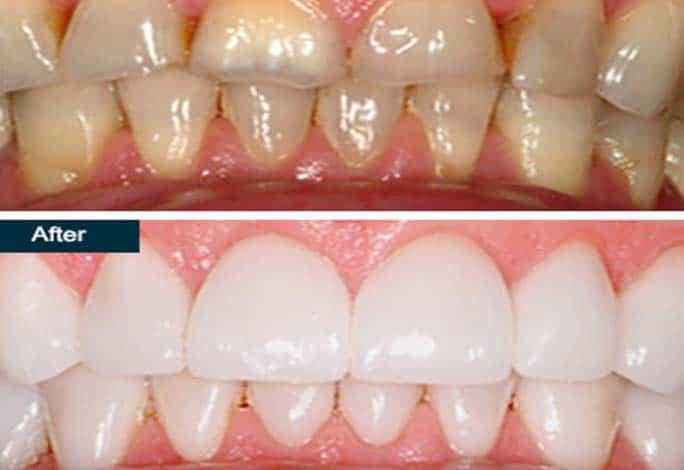 естетична стоматология-2