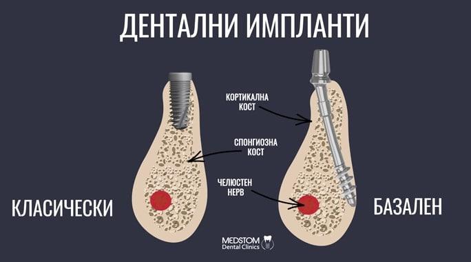 Зъбни импланти: Наръчник на пациента