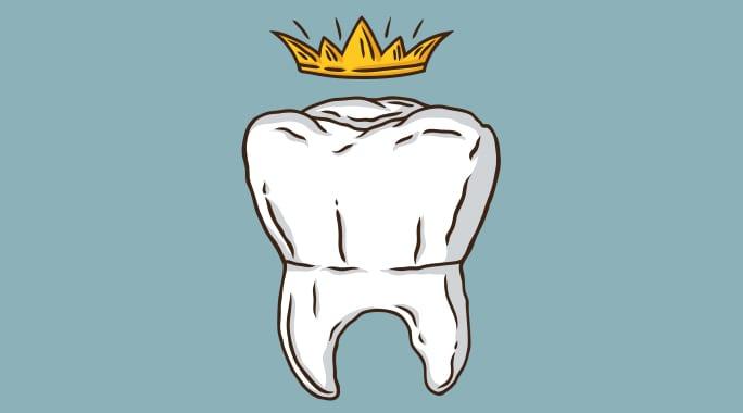 Видове коронки за зъби