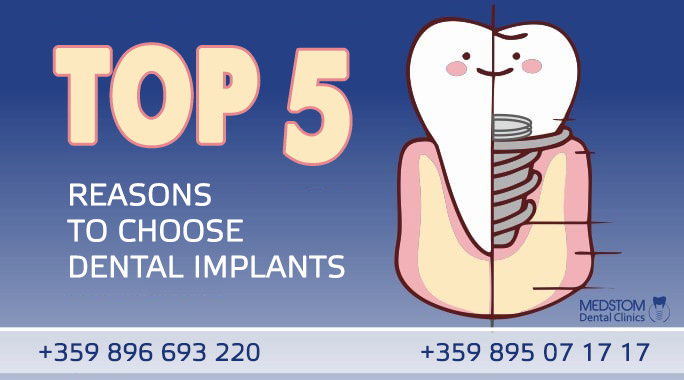 Dental Implants in Bulgaria: 5 answers with YES, with two hands FOR