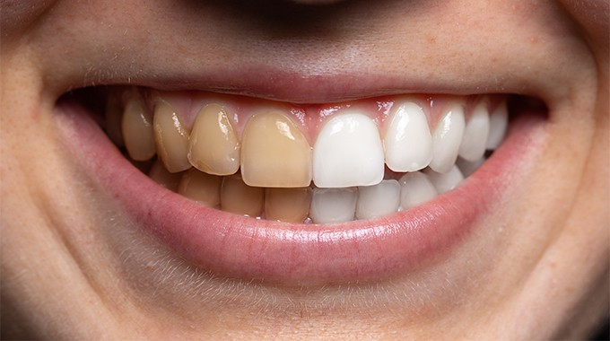 Endodontics whitening - a conservative solution for a beautiful smile