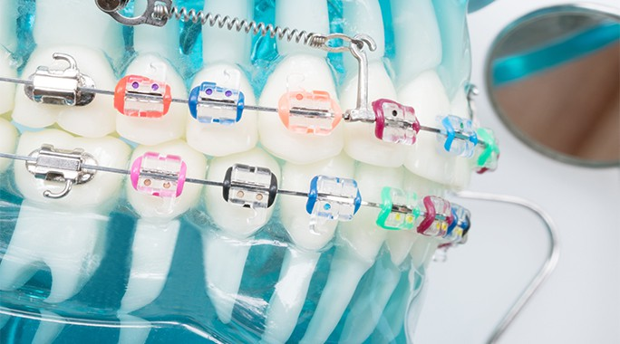 How to take care of your braces? What to do and what not to do?