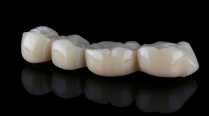 Dental Bridge and what are the types of dental bridges