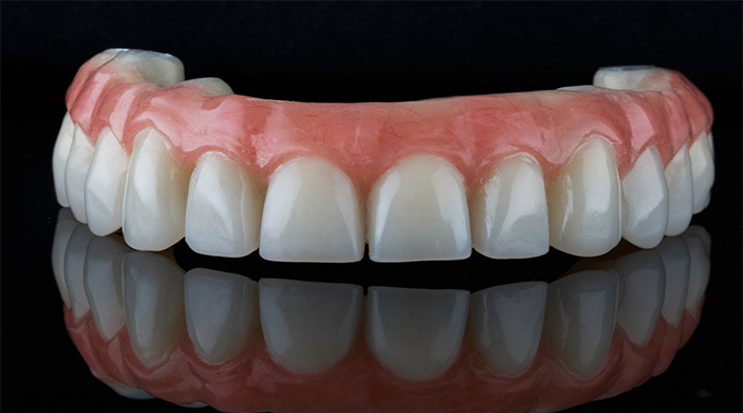 Dental crown: When does a tooth need a crown tooth?