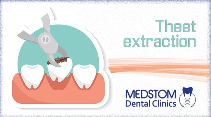 Theet extraction – everything you should know