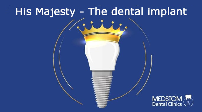 Dental implant: the best replacement for a tooth!
