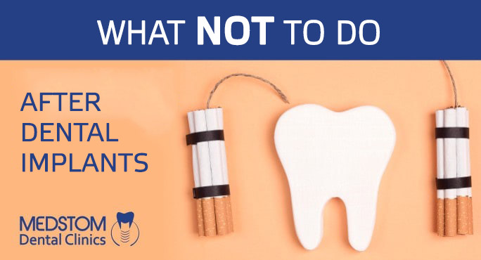 What not to do after dental implants