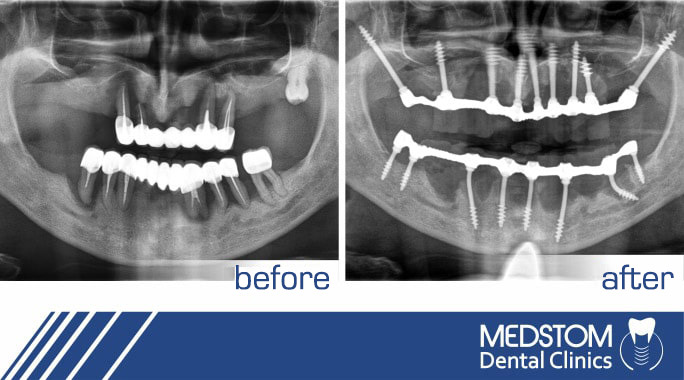 Dental Implants Bulgaria: 10 most popular myths and facts